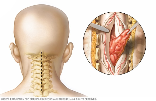 Spinal tumor neck surgery