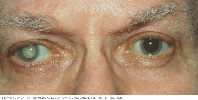 Photo showing a person with a cataract