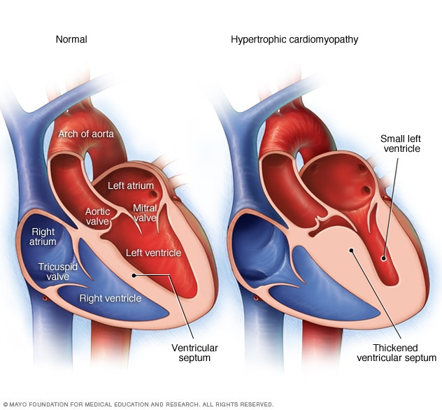 Normal heart and heart with hypertrophic cardiomyopathy