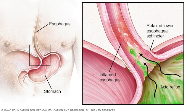 How GERD occurs in the esophagus