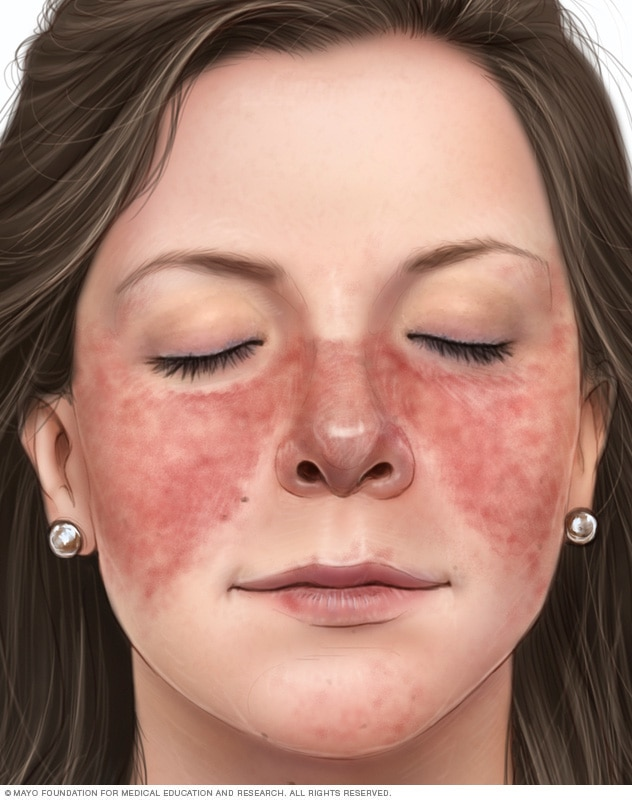 Illustration showing red, butterfly-shaped rash on nose and cheeks