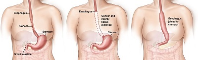 Esophageal_Cancer_resized3
